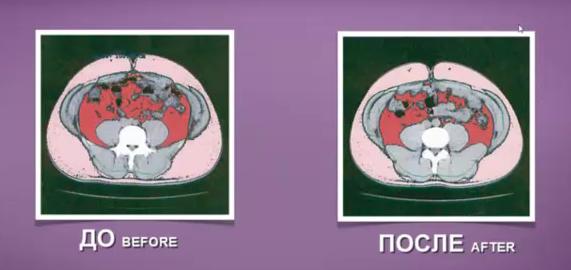 До и после избавления от висцерального жира