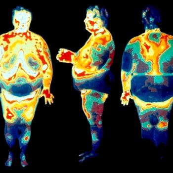 Висцеральный жир: как избавиться
