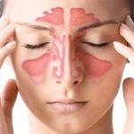 Синусит: причины возникновения, симптомы, лечение