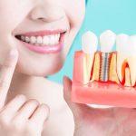 Современная имплантация зубов